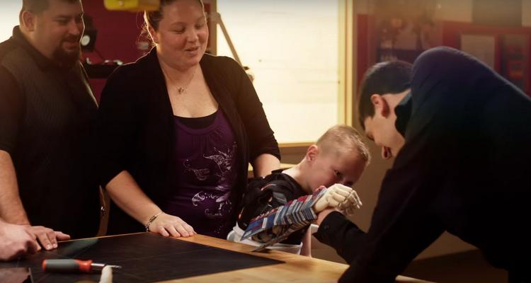 protheses voor kinderen